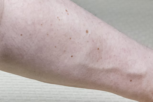 Theo các chuyên gia, số lượng nốt ruồi trên một cánh tay phải có ý nghĩa quan trọng trong việc chẩn đoán ung thư da. Ảnh minh họa