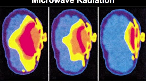 Não bộ trẻ em có nguy cơ bị tổn thương cao hơn người trưởng thành. Ảnh: Collective-evolution