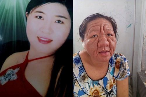 Cô gái 29 tuổi hóa bà lão 70 do hậu quả của việc lạm dụng thuốc bôi chứa corticoid. Ảnh: VnExpress