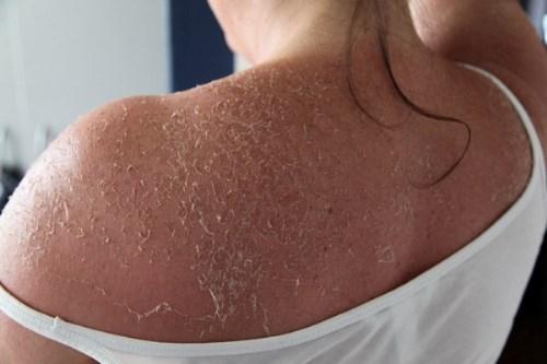 Nếu lột da quá nhanh sẽ khiến da dễ bắt nắng, gây nám và nguy cơ ung thư da tăng cao, phỏng hoặc viêm da. Ảnh minh họa.