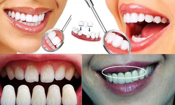Bọc răng sứ giá rẻ: Dễ bị viêm lợi, hôi miệng, tiêu xương - gẫy răng