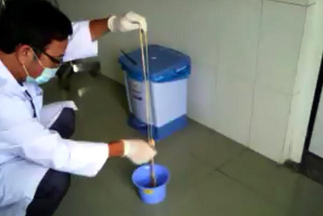 Sán dài 10 m làm tổ trong bụng người đàn ông Quảng Bình, làm gì để chống nhiễm sán?