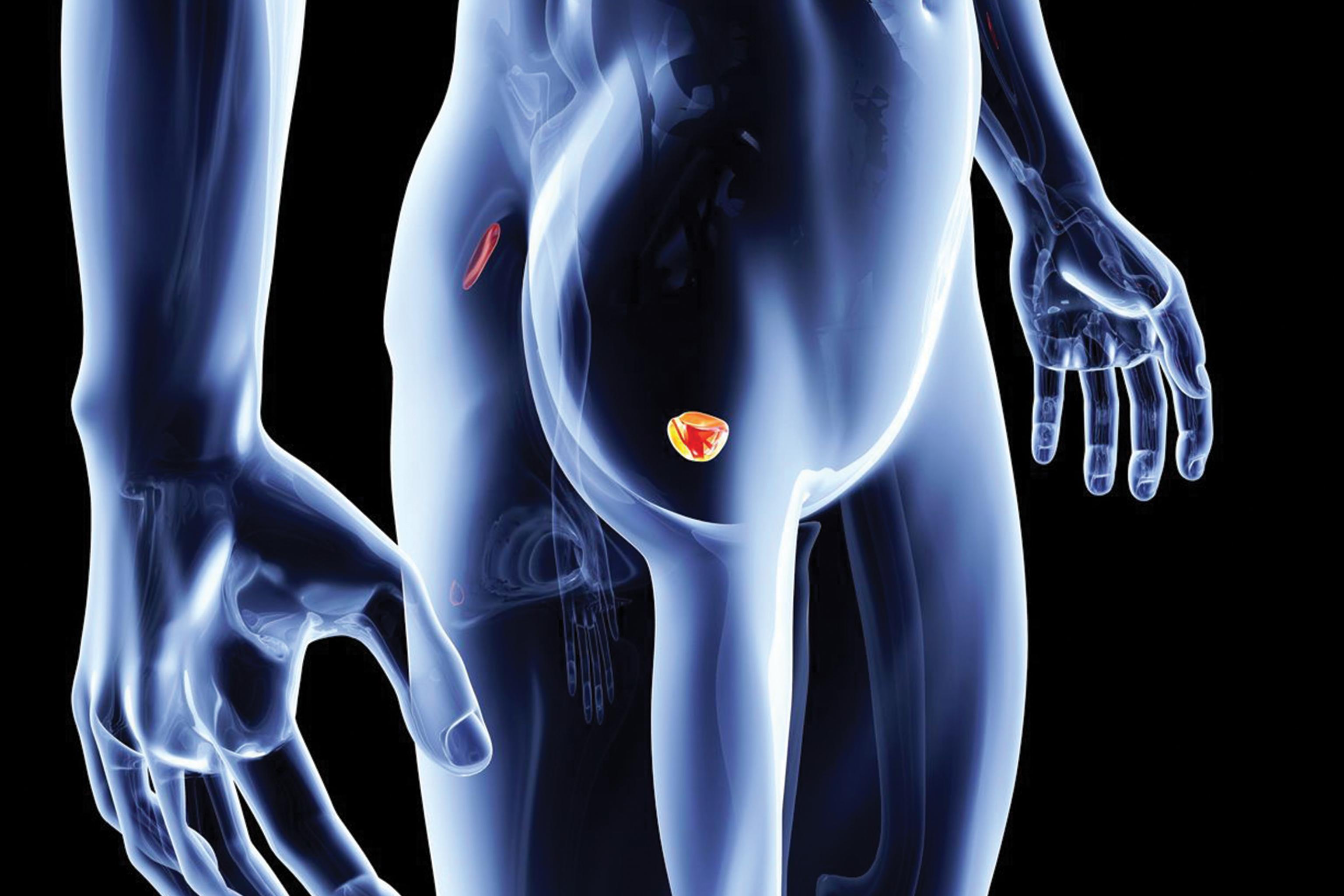 Đàn ông nếu thấy dấu hiệu này ở tinh dịch 80% đã bị ung thư tuyến tiền liệt