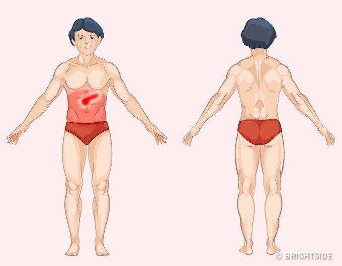 Vị trí cơn đau cảnh báo bệnh nguy hiểm ai cũng nên biết để tự chuẩn đoán