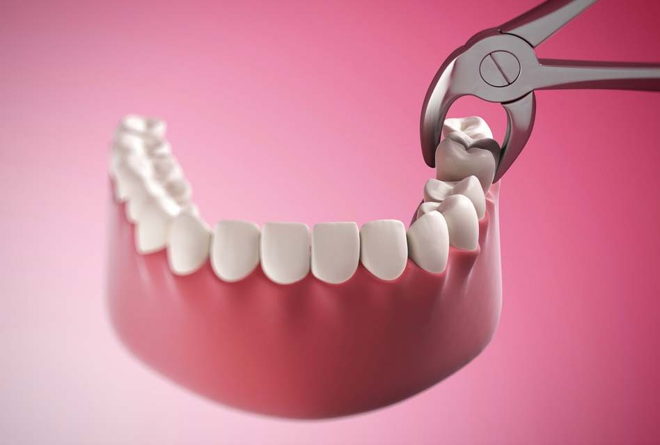Chuyên gia tiết lộ sự thật kinh hoàng: Tử vong vì chiếc răng khôn, chớ coi thường!