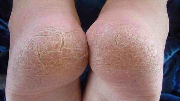 Đừng coi thường vết chai chân vì nó có thể đang cảnh báo bệnh nguy hiểm!