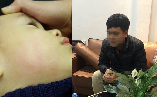 Bé trai 22 tháng tuổi bị bác sĩ tát đỏ mặt: Bộ Y tế yêu cầu kiểm tra và xử lý nghiêm khắc