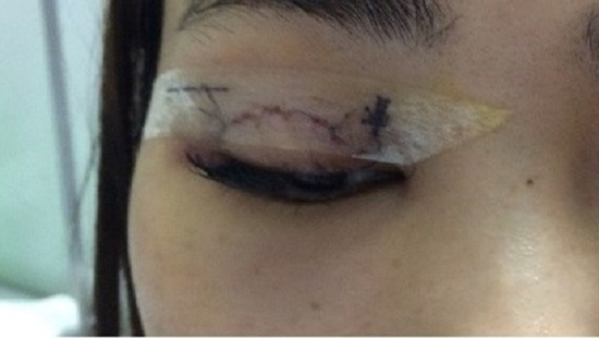 Hà Nội: Đi phẫu thuật nhấn mí làm đẹp một cô gái bị kim chui vào mắt
