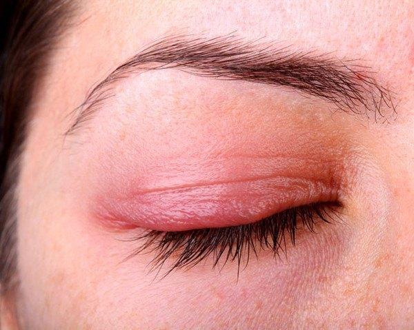 Một số căn bệnh về mắt cần phòng tránh vào mùa hè