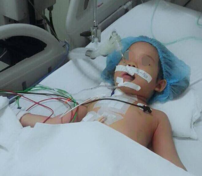 Chơi đùa bị vấp ngã, bé gái 4 tuổi bất ngờ bị bút bi đâm thấu lồng ngực