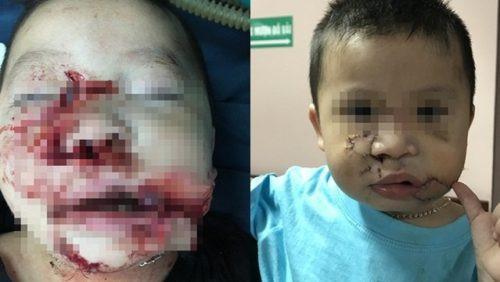 Hà Nội: Bé trai 2 tuổi bị chó đẻ cắn nát mặt, tổn thương cấu trúc mặt nghiêm trọng