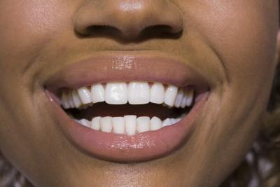 Kem làm trắng răng giúp nụ cười thêm rạng rỡ