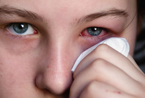 Khăn mặt kém chất lượng có thể gây viêm mắt, dị ứng