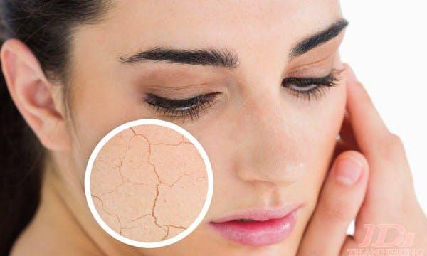 Cách trị da khô nứt nẻ hiệu quả và nhanh chóng nhất ngay tại nhà