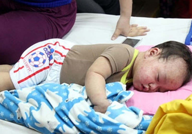 Những sai lầm này của cha mẹ khiến bệnh sởi của bé 'nặng càng thêm nặng'