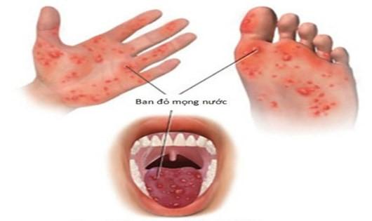 Bệnh chân tay miệng lây lan chóng mặt: Các dấu hiệu nhận biết sớm nhất