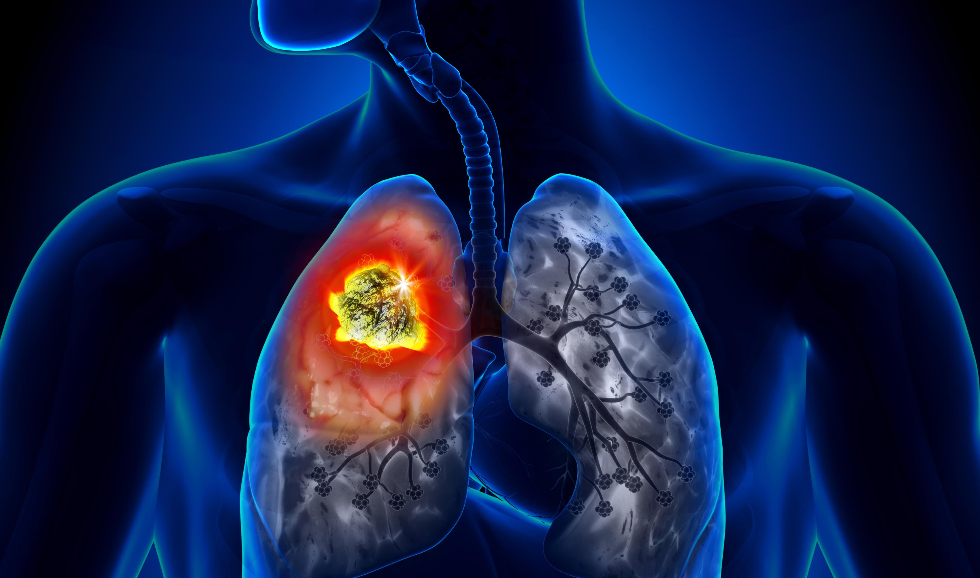 Những dấu hiệu nhận biết sớm nhất bệnh ung thư phổi mà nghệ sĩ Lê Bình mắc phải