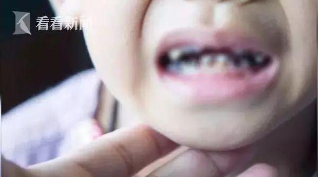 Bé 3 tuổi bị mủn nát 16 chiếc răng vì thói quen nhiều cha mẹ Việt mắc phải