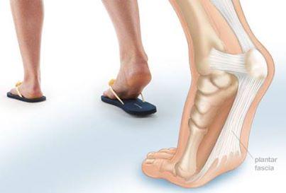 Dép tông dễ gây tổn thương do ngón chân.