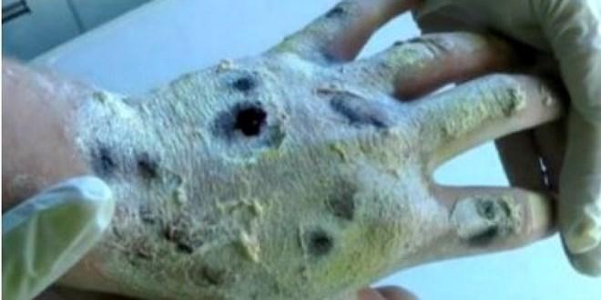 ''Ma túy cá sấu'' có thể hủy hoại cơ thể một cách nhanh chóng.