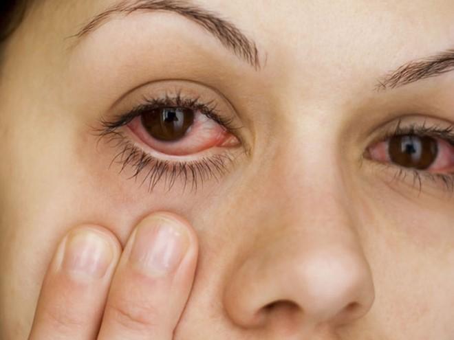 Bệnh đau mắt đỏ đang bùng phát mạnh, người dân nên đề phòng. Ảnh minh họa