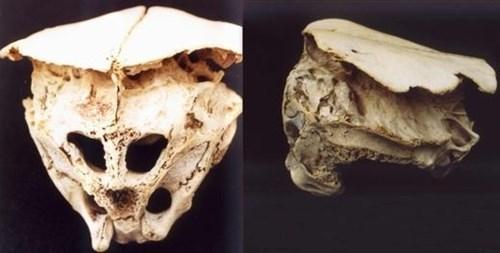 Một hộp sọ có tới 6 lỗ khiến giới khoa học cũng chưa lý giải được. Ảnh: Kiến Thức