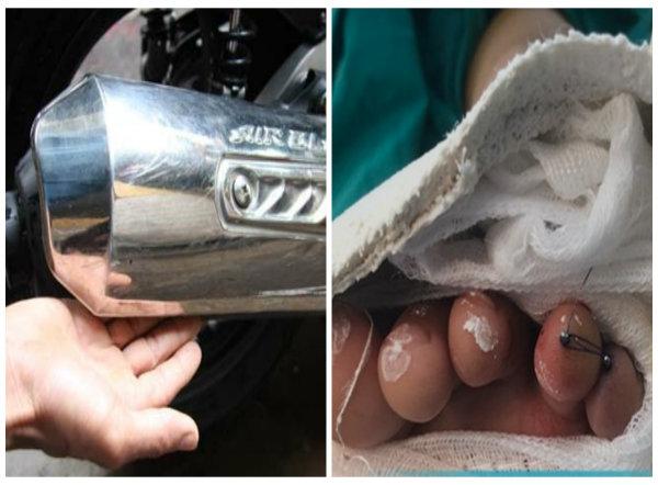 Ốp ống pô xe Air Blade khiến ngón áp út bàn chân trái của bé trai bị cắt đứt