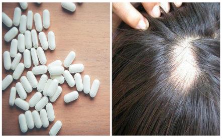 Sử dụng thuốc chữa rụng tóc finasterid có nguy cơ xuất hiện hành vi tự tử