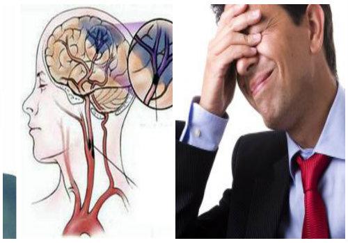 Đột quỵ nhẹ là tình trạng bị thiếu máu não vô cùng nguy hiểm