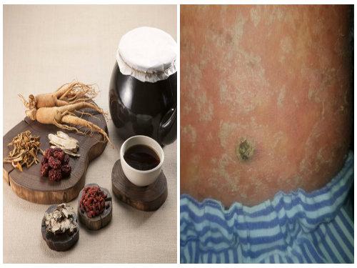 Uống thuốc đông y không rõ nguồn gốc nhiều năm để trị vảy nến thanh niên bị mắc ung thư da