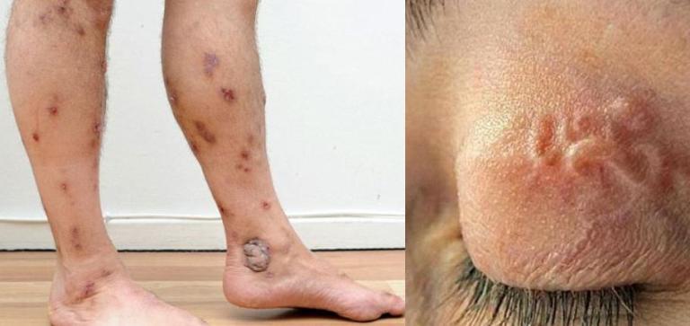 dễ bị gian sán, viêm loét tay chân