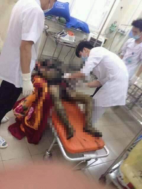 ngọn lửa khiến người vợ bị thương nặng, còn chồng đã tử vong