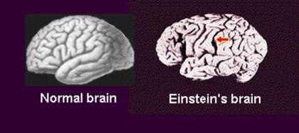 Bộ não của nhà bác học Albert Einstein