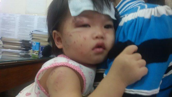 Bé 1 tuổi chi chít vết cào cấu khi đi nhà trẻ: Nhập viện vì viêm phế quản