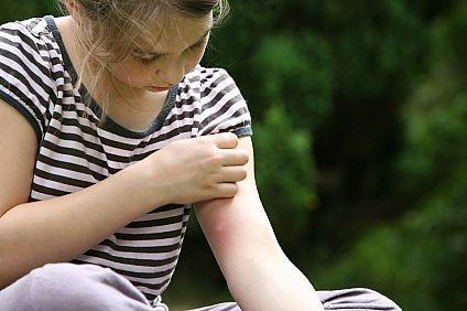 Mặc quần áo sặc sỡ là nguyên nhân bị muỗi đốt nhiều hơn