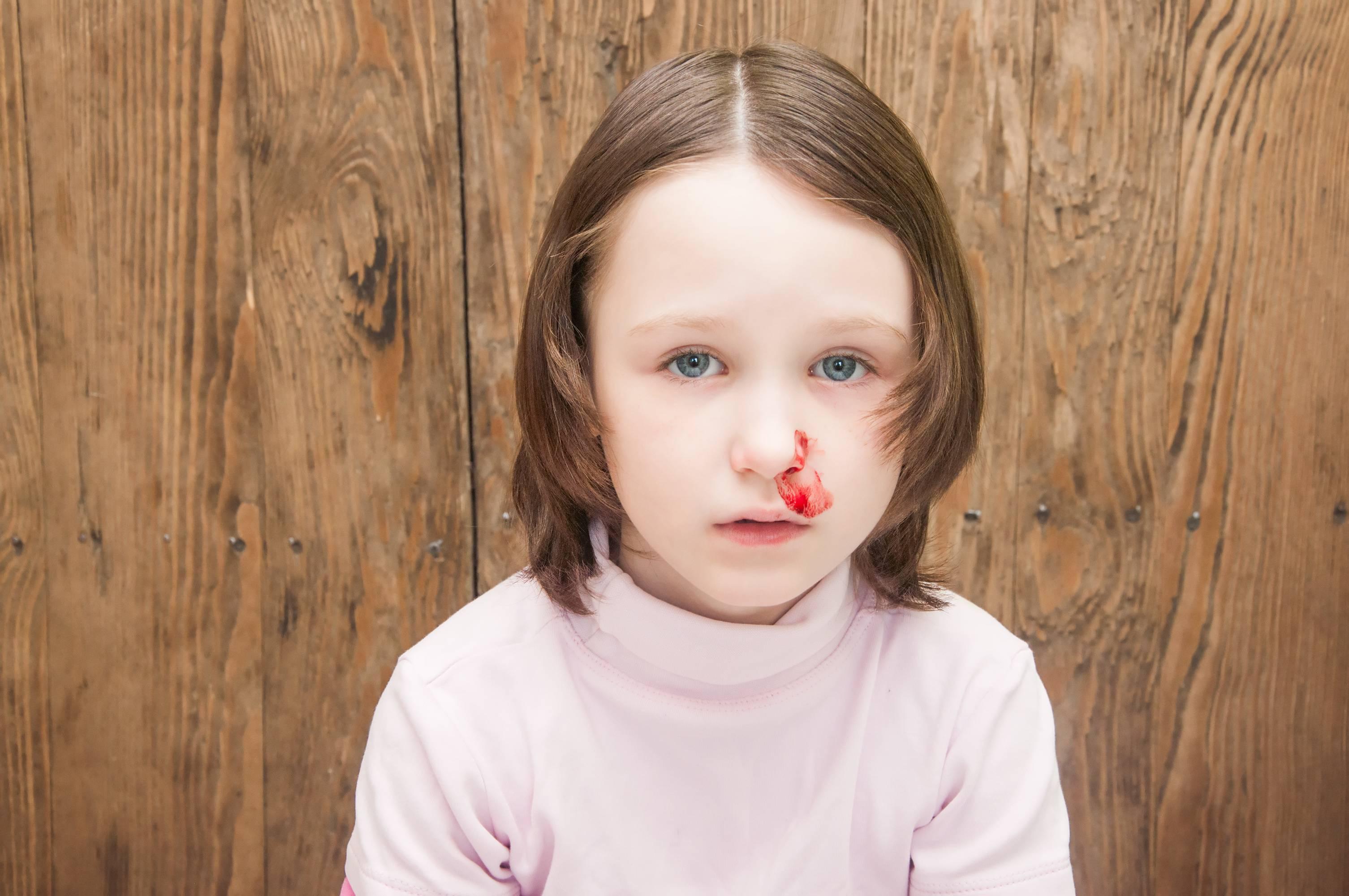 Thời tiết hanh khô là nguyên nhân chính dẫn đến chảy máu cam ở trẻ. Ảnh minh họa