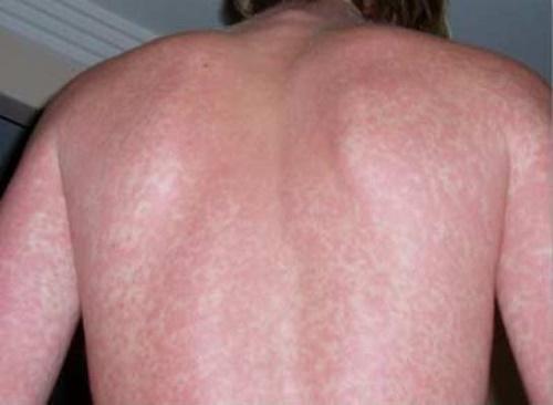 Phát ban thường xuất hiện vào cuối chu kỳ của bệnh