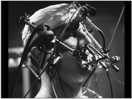 Các bệnh nhân của dự án MKULTRA bị tiêm nhiều thuốc tạo ảo giác và thay đổi chức năng não