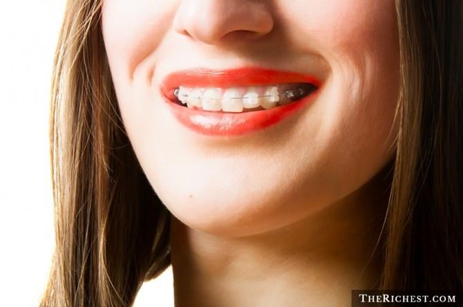 Niềng răng trong suốt có tính thẩm mỹ cao hơn, người đeo sẽ đỡ bị chê xấu hơn khi