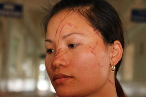 chị Vân bị vợ chồng ông Phúc truy tìm, rạch khắp mặt và đánh đập chị Vân vẫn bị vợ chồng ông Phúc truy tìm, rạch khắp mặt và đánh đập