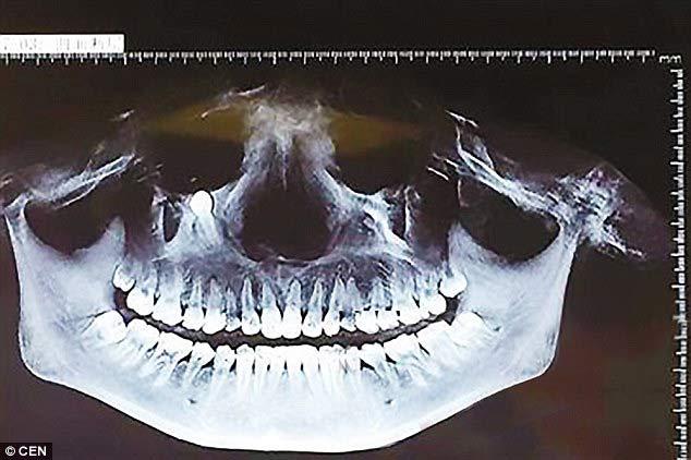 Phim chụp chiếc răng mọc dưới hốc mắt của Tào Phương. Ảnh: QQ