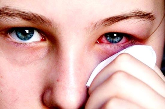 Sai lầm trong ăn uống khi kết hợp sai mật ong với thì là sẽ dẫn đến chứng đau mắt đỏ