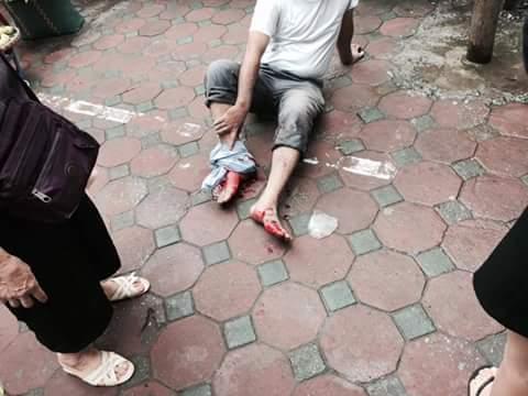 Một nạn nhân bị thương ở chân vừa được đưa ra ngoài