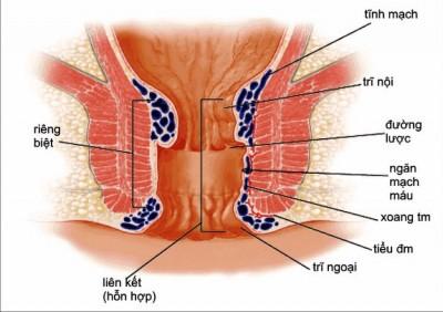 Tác dụng của dầu dừa trong điều trị bệnh trĩ - ảnh 1