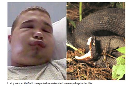 Đã từng có rất nhiều tai nạn hy hữu xảy ra vì nạn nhân muốn chụp ảnh tự sướng cùng rắn độc