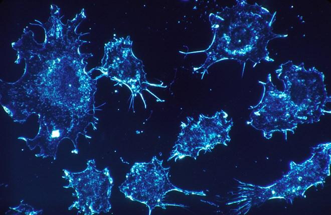 Nhờ công nghệ in 3D, các bác sĩ có thể gia tăng chất lượng điều trị ung thư