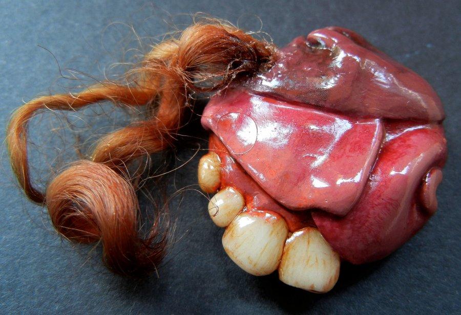 Hình ảnh một u quái Teratoma trong não người