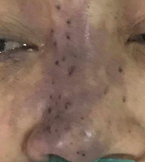 Vùng mũi bệnh nhân hoại tử nặng vì tiêm filler
