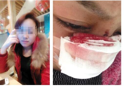 Cô Li tiết lộ mình bị chồng cắt mũi và bạo hành nhiều lần