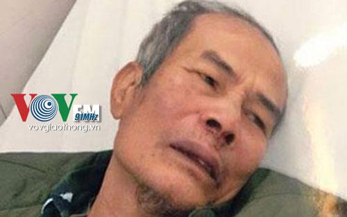 Bảo vệ trông xe bị đánh chấn thương sọ não ở Hà Nội là một trong những tin pháp luật online trong ngày